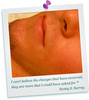 Experienced Acne Clinic Surrey Vancouver Helps Heal All