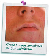 about-acne-photo1