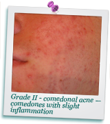 about-acne-photo2