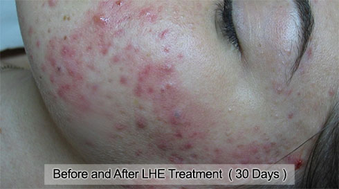 Acne Treatments :: Cystic Acne, Laser Therapy, Antibacterial Ozone